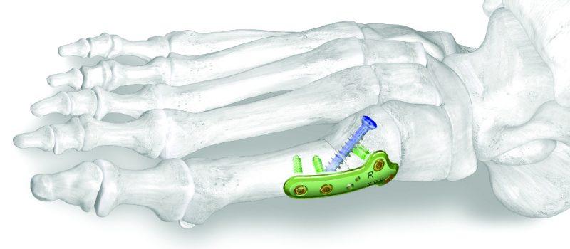 Premier dispositifs de fixation osseuse complètement résorbable